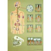A hiányos fogápolás oktatótabló